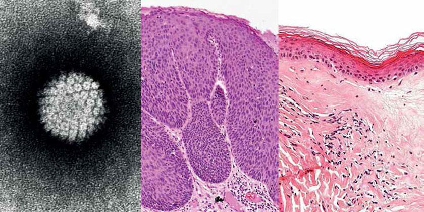 a: Humanes Papillomavirus (HPV) b: Bowenoide Papulose c: Balanitis xerotica obliterans (Lichen sclerosus et atrophicus)