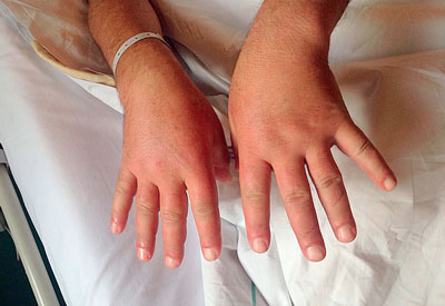 """Bei """"Puffy Hands"""" steht der Verdacht auf eine Kollagenose im Raum und es gilt, den Patienten rasch weiter abzuklären."""