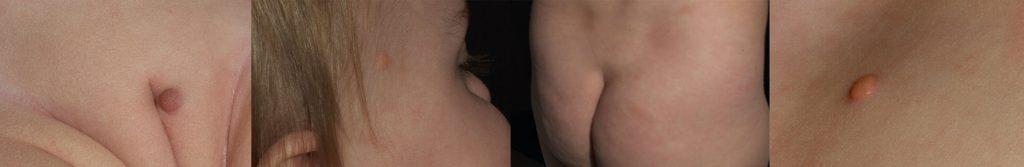 Fotos: Universitätsklinik für Dermatologie und Venerologie/Innsbruck
