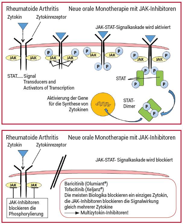 """Januskinase-Inhibitoren blockieren gleich am Anfang der Signaltransduktion die Phosphorylierung und verhindern so, dass überhaupt die """"Tür"""" in die Zelle aufgeht."""