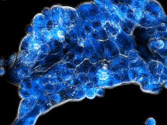 Die neue Strategie aktiviert den Wirkstoff (blau fluoreszierend) spezifisch im sauerstoffarmen Tumorgewebe