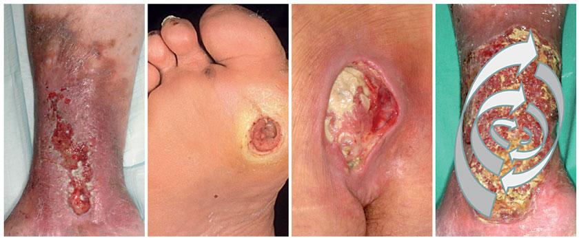 Abb. 1: Patient mit einem seit mehreren Jahren bestehenden Ulcus cruris venosum Abb. 2: Patientin mit diabetischem Fußulcus bei ausgeprägter Polyneuropathie Abb. 3: Immobile Patientin mit sakral lokalisiertem Dekubitus Abb. 4: Essener Kreisel für eine Screening-Untersuchung auf Bakterien bei einem Patienten mit Ulcus cruris venosum