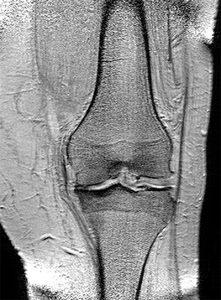 Magnetresonanztomographie eines arthrotischen Kniegelenkes. Zu sehen ist der Verschleiss der Knorpelschicht im linken Bereich des Bildes.