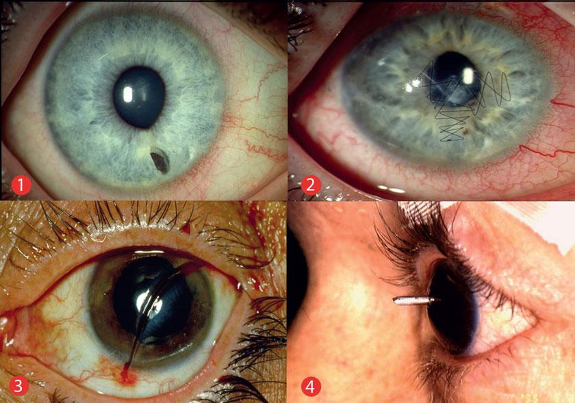 1 Entrundete Pupille bei intraokularem Fremdkörper; 2 mikrochirurgisch versorgte perforierende Bulbusverletzung mit Hornhauttrübung über der Pupille; 3 perforierende Bulbusverletzung mit Stanleymesser; 4 intraokularer Fremdkörper.