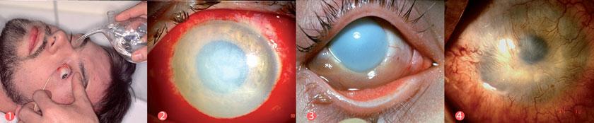 """1) Spülung des Auges; 2) akute Verätzung; 3) """"gekochtes Fischauge""""; 4) ausgedehnte Vaskularisationen der Bindehaut und Hornhaut nach Verätzung."""