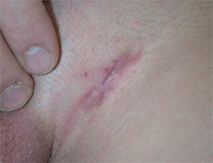 Dermatofibrosarcoma protuberans