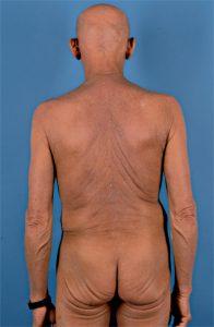 Sézary-Syndrom