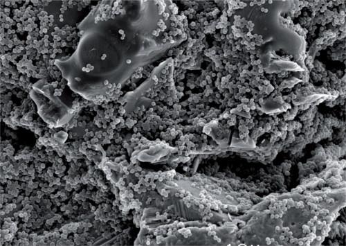 Titanplättchen bewachsen mit S. aureus,