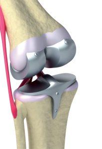 Implantat, Knie