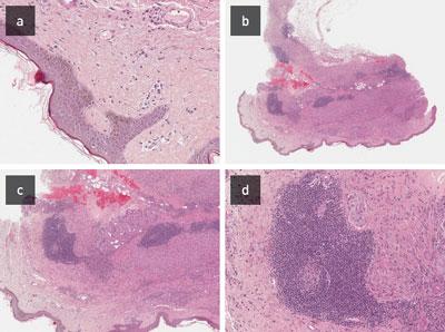 Abbildung 2: Histopathologischer Befund der Haut: a) Regelrechte Epidermis; b–d) Darunter die Dermis und auch die bindegewebigen Septen der Subcutis diffus durchsetzt mit einem granulomatösen Infiltrat (ohne Nekrose), zahlreichen mehrkernigen Makrophagen mit einem schaumigen Zytoplasma. Zusätzlich knotige lymphoplasmazelluläre Infiltrate von morphologisch regelrechten Zellen. Beigemengt auch neutrophile Granulozyten. Die Ziehl-Neelsen-Färbung war negativ.