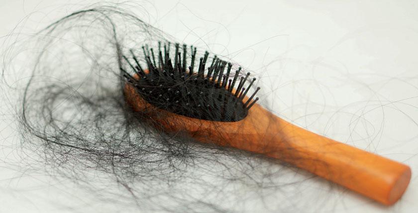 Die androgenetische Alopezie ist eine häufige Ursachen für Haarausfall. Frauen leiden besonders darunter.