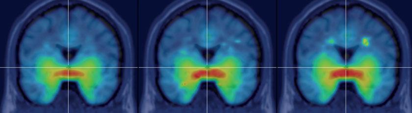 Frontalschnitt der Verteilung des Serotonintransporters in Frau-zu-Mann-Transsexuellen vor (PET 1, links) und einen (PET 2, Mitte) bzw. vier Monate (PET 3, rechts) nach Beginn der gegengeschlechtlichen Hormontherapie. Die Zunahme des Bindungspotenzials über die Zeit wird durch die Zunahme der grün-gelb-roten Färbung in subkortikalen Strukturen deutlich.