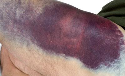 Typisch für die erworbene Hemmkörper-Hämophilie sind großflächige Hämatome an der Haut, aber auch tiefe Muskelblutungen.