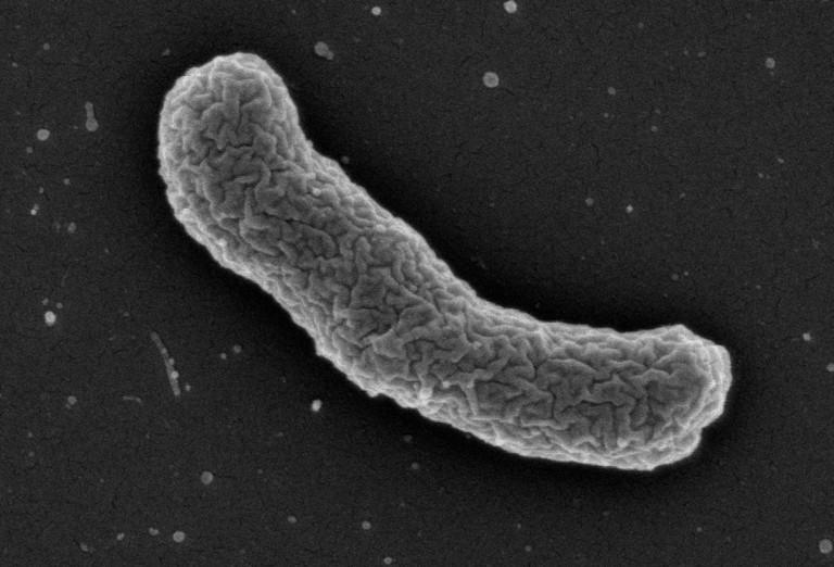 Elektronenmikroskopische Aufnahme des Teixobactin-Produzenten Elefhtheria terrae