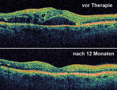 Eine Schwellung der Netzhaut sowie deren deutlicher Rückgang nach mehreren intravitrealen Injektionen ist mit der optischen Kohärenztomographie darstellbar und quantifizierbar.