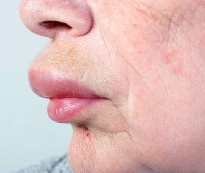 Ob die dicke Lippe von einer Überempfindlichkeitsreaktion gegenüber einem Arzneimittel herrührt, muss sorgfältig abgeklärt werden.