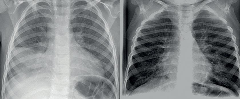 Junger Patient (sechs Jahre) mit Mittellappenpneumonie (Bild li.), 18 Monate altes Kleinkind mit Bronchopneumonie (Bild re.)