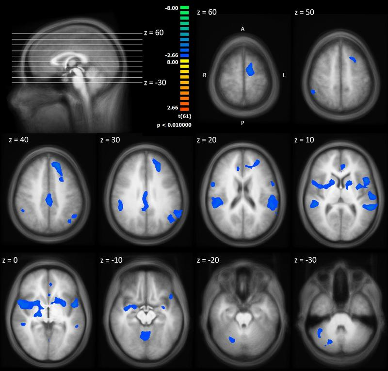 Das Hauptergebnis der Studie im Horizontalschnitt (von oben nach unten): Blau eingefärbte Bereiche zeigen die Areale an, in denen die neuronale Reaktion über den Verlauf des Experimentes abnimmt.
