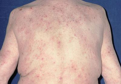 Patientin mit Prurigo nodularis: Auffällig ist, dass die Kratzläsionen in der Mitte des Rückens ausgespart sind (Schmetterlingszeichen).