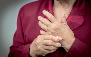 In Zukunft wird der kurzfristige Einsatz höherer Dosen von Glukokortikoiden in der Therapie der rheumatoiden Arthritis leitlinienkonform sein.