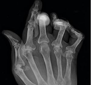 PF: Rheumatoide Arthritis