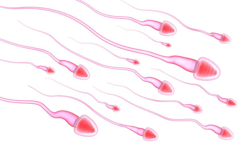 Männer, die wegen Mängeln in ihren Samen unfruchtbar sind, haben einer aktuellen Studie zufolge ein erhöhtes Risiko, früher zu sterben als Männer mit normalen Samen.