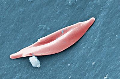 sichelzelle.400