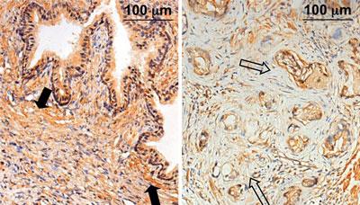 Im Gegensatz zur hohen Expression von SEPP1 im Stroma vom benignen, histologisch normalen Prostatagewebe (Abb. links, schwarze Pfeile) zeigt die immunhistochemische Färbung eine verminderte Expression von SEPP1 im PCaassoziierten Stroma (Abb. rechts, offene Pfeile).