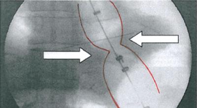 """Besteht eine Zwerchfell-bedingte Dysphagie, zeigt sich bei der pneumatischen Dilatation eine """"Wespentaille""""."""